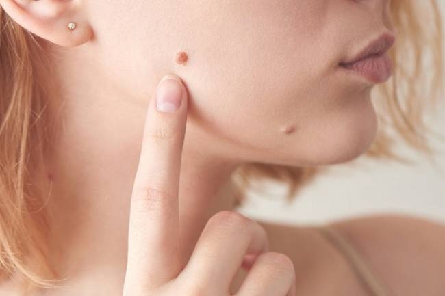 How To Identify Skin Tags and Moles