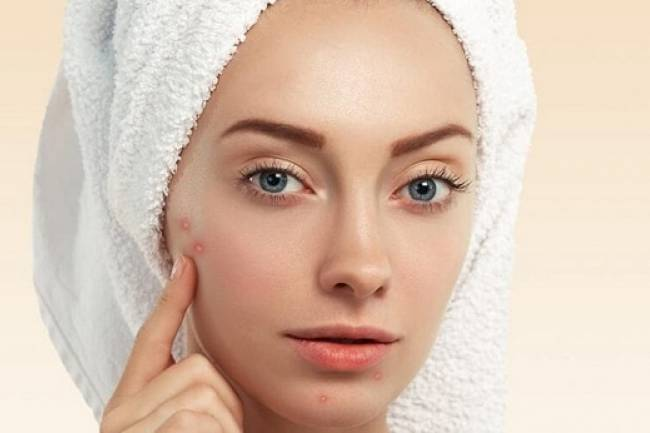 8 Natural Remedies to get rid of Whiteheads
