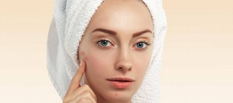​8 Natural Remedies to get rid of Whiteheads